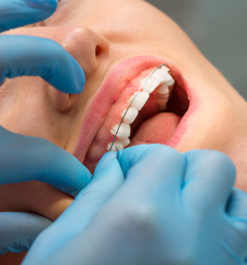 Patient at a dentist's reception. Dental treatment, braces on the teeth. Orthodontic Treatment. Process of installation of braces